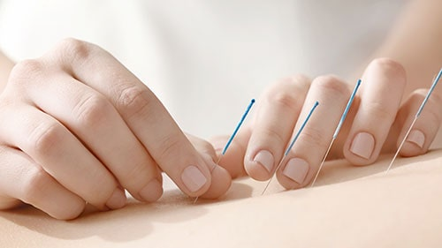 Acupuncture-min.jpg