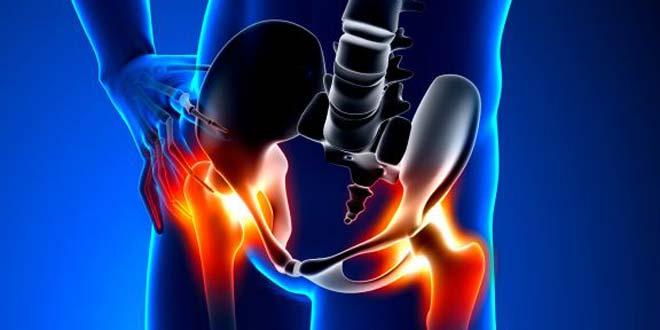 درد استخوان لگن و باسن