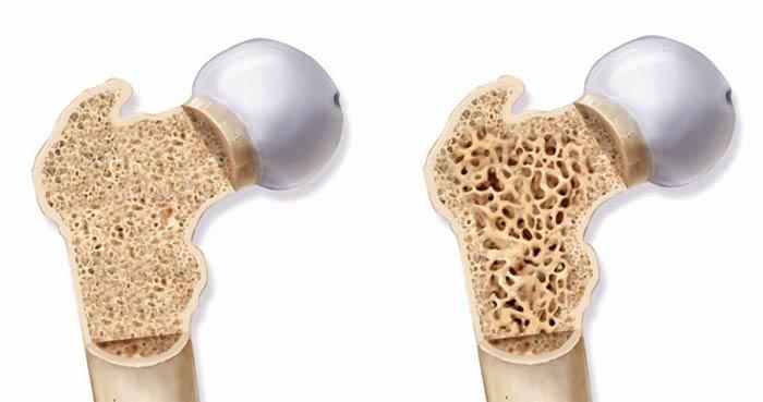 علائم-و-درمان-پوکی-استخوان-min.jpg
