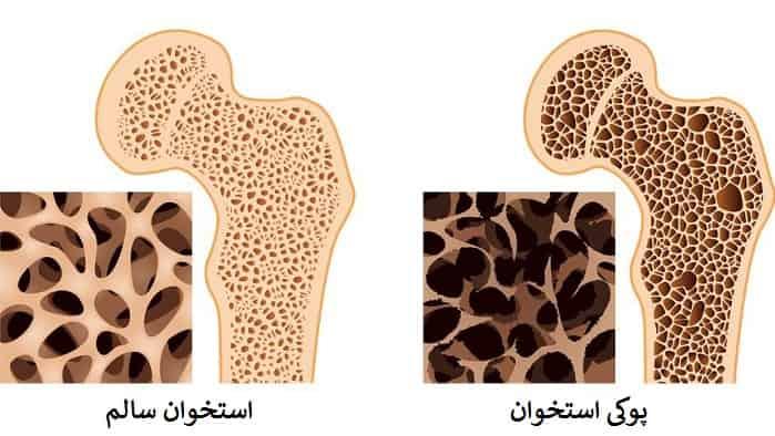 علائم پوکی استخوان
