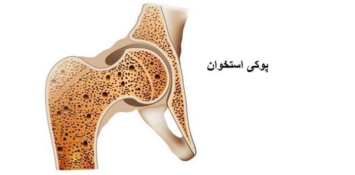 علت ها و دلایل پوکی استخوان