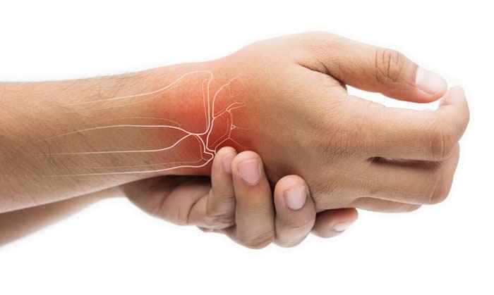 بیماری روماتیسم مفصلی