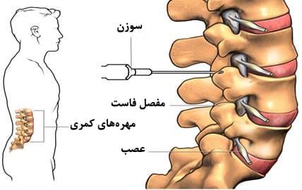 تزریق بلوک فاست و تزریق در مفصل فاست