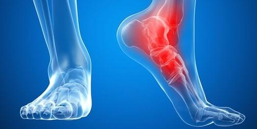 درمان شکستگی استخوان مچ پا-