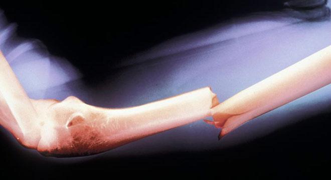 علائم شکستگی قسمت فوقانی استخوان بازو-