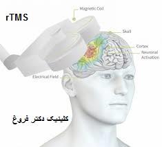 تحریم مغناطیسی مغز