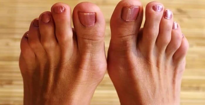 درمان انگشت چکشی در کلینیک پا