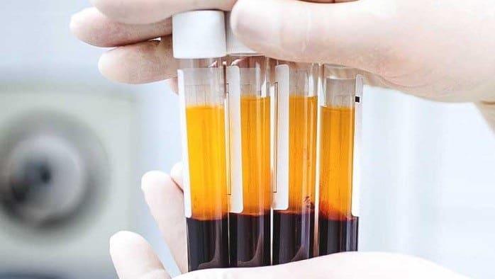 تزریق پلاسمای غنی از پلاکت چگونه به بهبود بدن کمک میکند؟