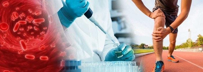 تزریق پلاسمای غنی از پلاکت یک روش ایمن و موثر و با ماندگاری بالا است