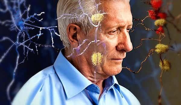 نحوه درمان آلزایمر