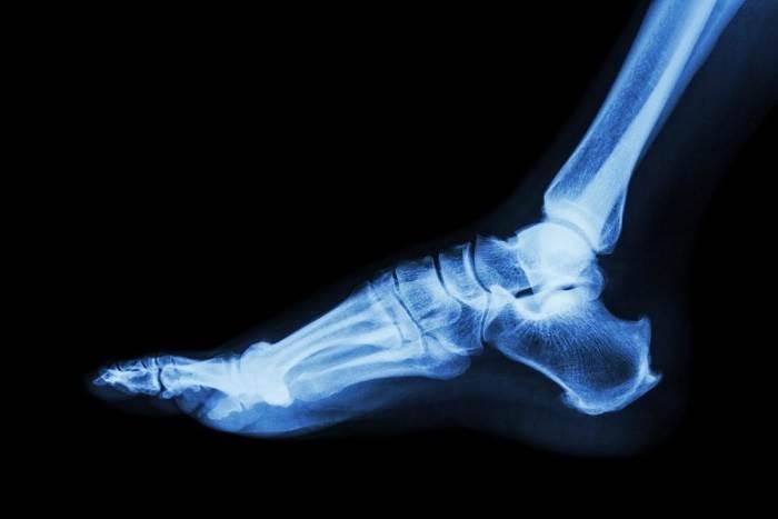 اسکنهای تصویربرداری و عکسبرداری رادیولوژی جهت تشخیص نوع آرتروز و کنترل روماتیسم مفصلی