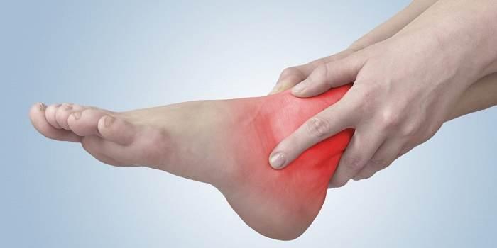 درمان ورم پا، ساق و مچ پا در منزل