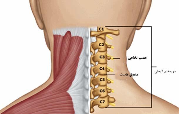 کشیدگی و پیچ خوردگی گردن